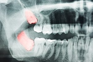 x-ray of wisdom teeth coming in sideways